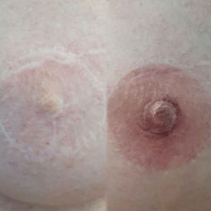 Areola tattoo photo before and after