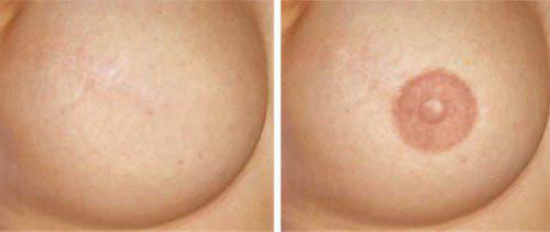 Areola tattoo aftercare