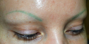 eyebrow tattoo removal Perth