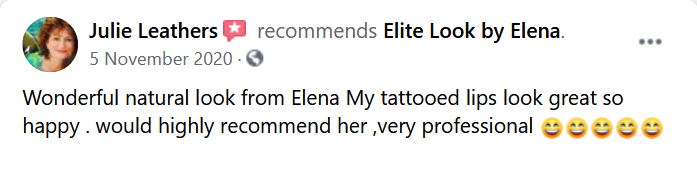 tattoo removal Perth