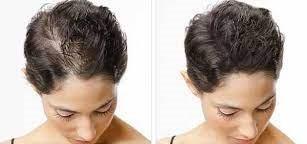scalp micropigmentation perth